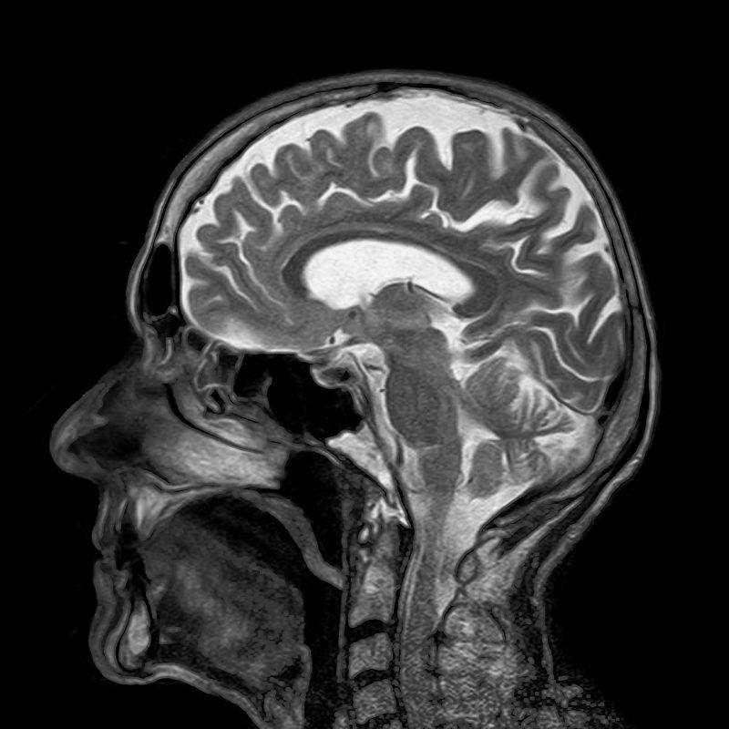 Parkinson In Toom-img
